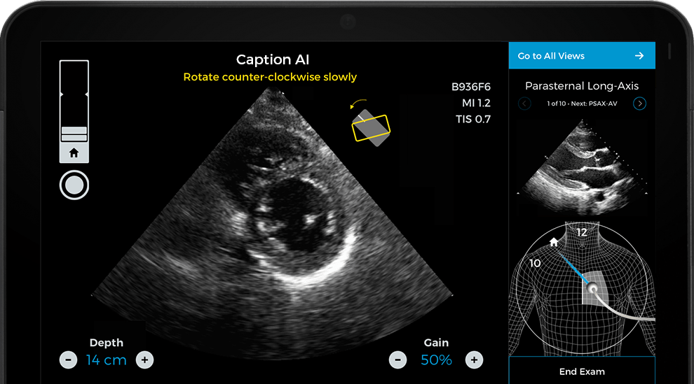 Caption Health Nabs $53M to Commercialize FDA-Cleared AI-Guided Ultrasound Technology