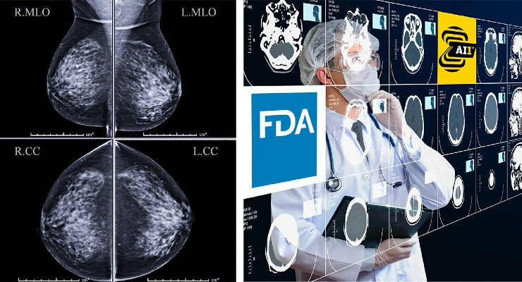Zebra Medical Receives the US FDA's Approval for its HealthMammo Mammography Tool
