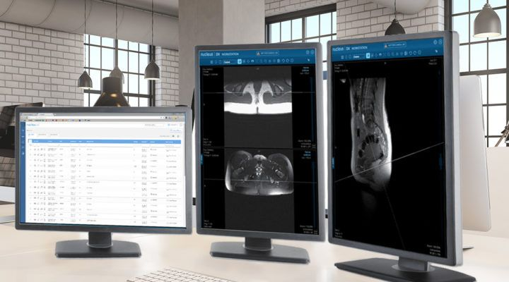 Change Healthcare Acquires Cloud-Native Imaging Platform Nucleus.io