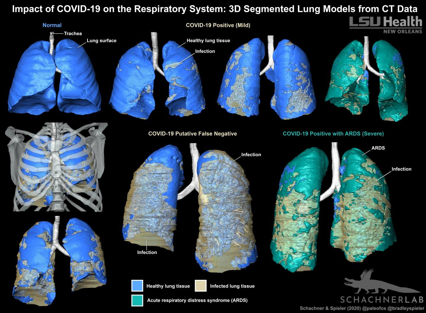 LSU Health creates 3D digital models of patients' lungs, chest to diagnose COVID-19