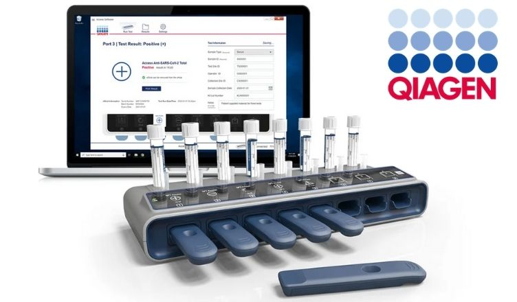 Qiagen to Launch Digital Test for Detecting SARS-CoV-2 Antibodies in the US