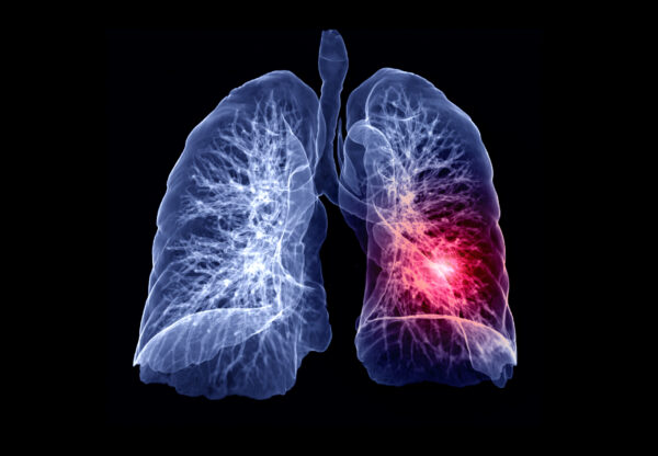 Amgen announces 'positive' Phase II lung cancer results for cancer drug with hard-to-reach target