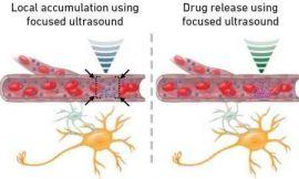 Millimeter-precision drug delivery to the brain