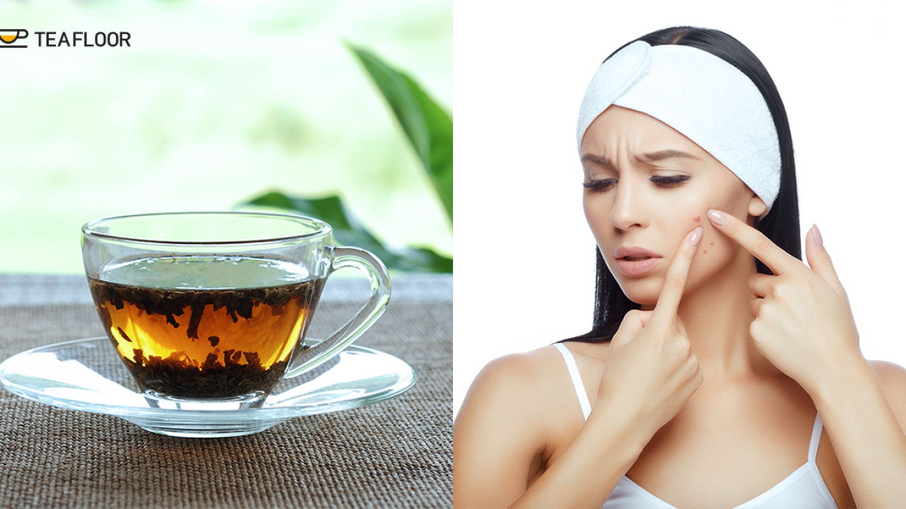 Topical Green Tea for Acne and Fungal Infections